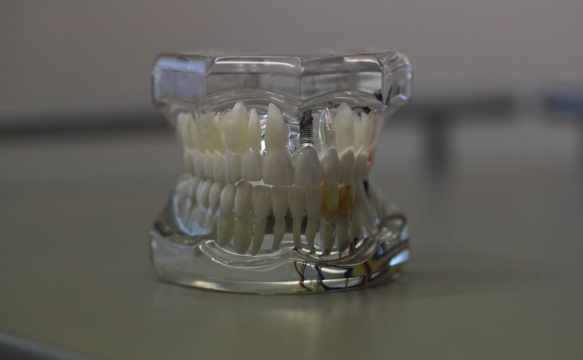 Zła metoda odżywiania się to większe niedostatki w jamie ustnej oraz także ich zgubę
